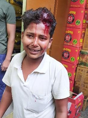 आक्रोशित लोगों ने भी सिपाही को पकड़ कर उसके साथ की मारपीट गल्ला मंडी में ट्रक से वसूली से व्यापारियों में आक्रोश चंदन अग्रहरि शाहगंज, जौनपुर। नगर के कलेक्टरगंज गल्ला मंडी में रविवार की सुबह करीब 8 बजे माल उतार रहे ट्रक से पांच सौ रुपए न मिलने से खफा पुलिस वाले ने खलासी को पीटकर लहूलुहान कर दिया। पुलिस वाले की इस कारगुजारी से रूष्ट व्यापारी व पल्लेदारों ने पुलिस वालों को दौड़ा लिया। दूसरे पुलिस वाले तो भाग निकले जबकि पिटाई करने वाले पुलिस वाले के साथ लोगों ने दुर्व्यवहार करते हुए हाथापाई की। प्रबुद्ध जनों के हस्तक्षेप के बाद मामला शांत हुआ। मिली जानकारी के अनुसार प्रयागराज से दाल लेकर रविवार की सुबह करीब आठ बजे एक डीसीएम शाहगंज पहुंची और कलेक्टरगंज गल्ला मंडी में फार्म धर्मेंद्र कुमार आशीष कुमार ट्रेडर्स की गोदाम में दाल उतारने लगा। इसी समय वहां पर कोतवाली के आधा दर्जन की संख्या पुलिस वाले पहुंचे और डीसीएम के खलासी से पांच सौ रुपए मांगने लगा। खलासी मोहम्मद सालिम 15 पुत्र गुल मोहम्मद निवासी सोरांव प्रयागराज ने पैसे देने से मना किया तो आग बबूला होकर एक सिपाही उसकी पिटाई करने लगा वह जान बचाकर बगल की विनोद कुमार अग्रहरी की दुकान में घुस गया वहां पर भी सिपाही दौड़ते हुए पहुंचा और खलासी को पीटकर लहूलुहान कर दिया। पुलिस की यह कारस्तानी लोगों को नागवार गुजरी और पुलिस को दौड़ा लिया। साथी पुलिस वाले तो भाग निकले जबकि पिटाई करने वाले सिपाही को लोगों ने पकड़ लिया। इसके बाद धक्का मुक्की हाथापाई भी आक्रोशित लोगों की। बाद मौके पर प्रबुद्ध जनों ने लोगों को समझा-बुझाकर शांत कराया। पुलिस मामले को रफा-दफा करने में जुटी हुई है। इस बारे में पूछे जाने पर क्षेत्राधिकारी जितेंद्र कुमार दुबे ने घटना के बारे में जानकारी होने से इन्कार किया। फिलहाल घटना को लेकर व्यापारियों में आक्रोश व्याप्त है।